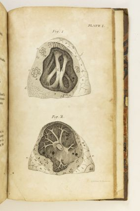 A TREATISE ON THE DISEASES OF THE CHEST, IN WHICH THEY ARE DESCRIBED ACCORDING TO THEIR ANATOMICAL CHARACTERS, AND THEIR DIAGNOSIS ESTABLISHED ON A NEW PRINCIPLE BY MEANS OF ACOUSTICK INSTRUMENTS.